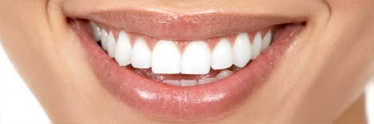 salute denti parodontite